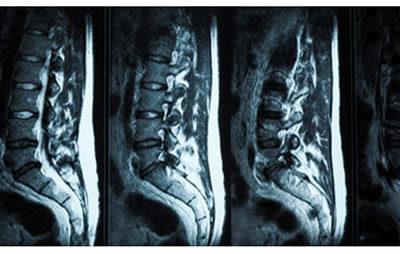 Mal di schiena, Ernia Discale e Risonanza Magnetica