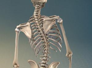 Quali sono le Cause della Scoliosi?